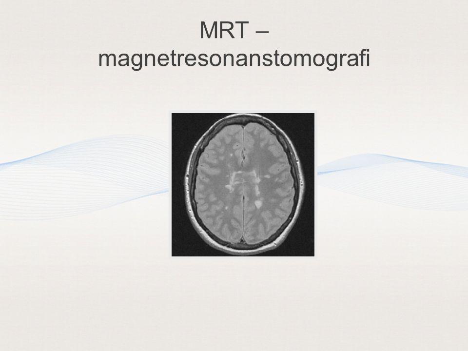 MRT – magnetresonanstomografi