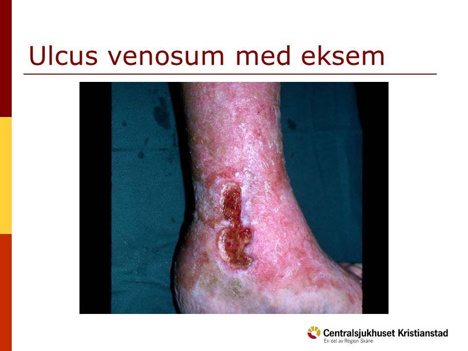 Ulcus venosum med eksem