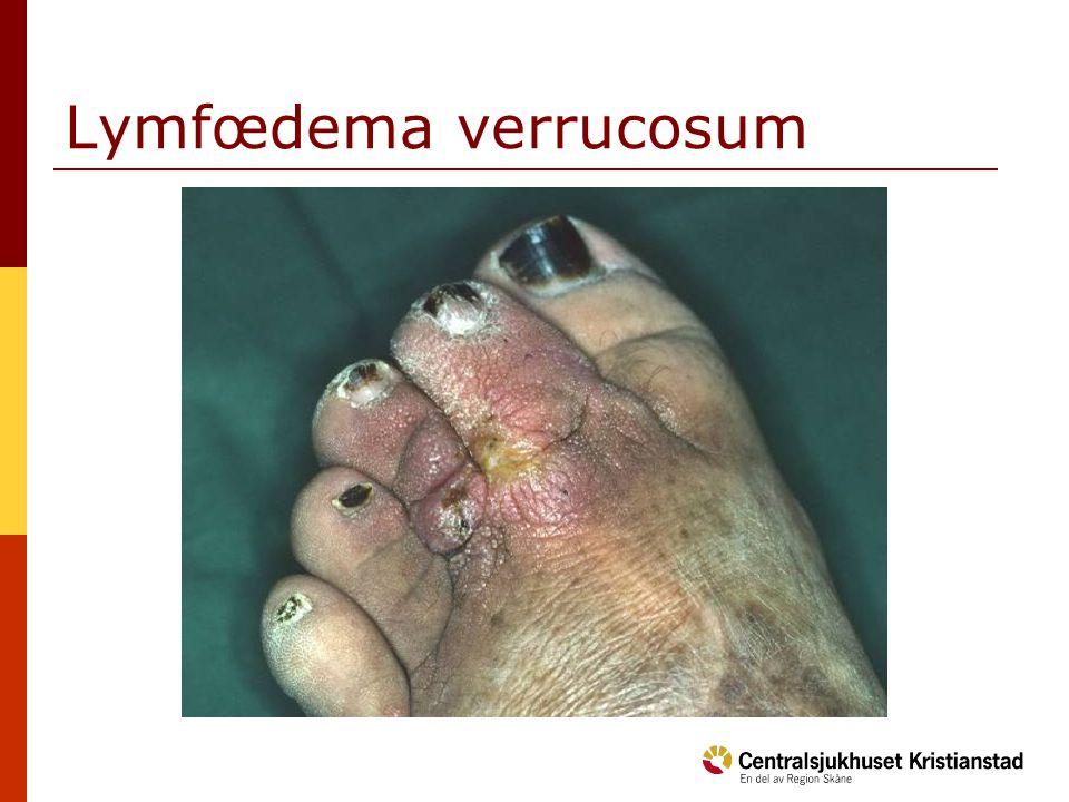 Lymfœdema verrucosum