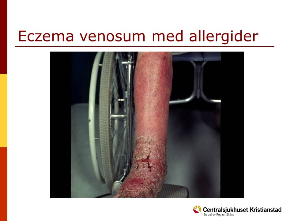 Eczema venosum med allergider