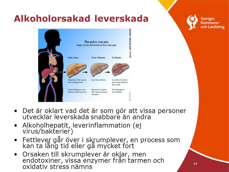 Alkoholorsakad leverskada