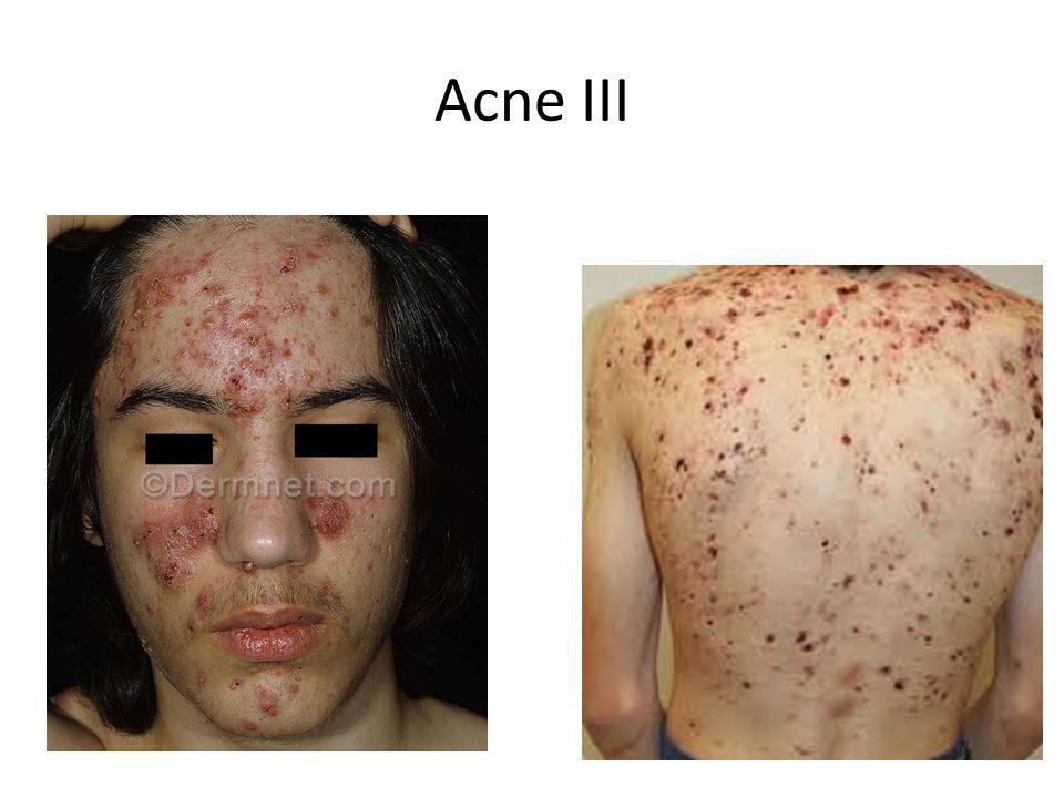 Acne III