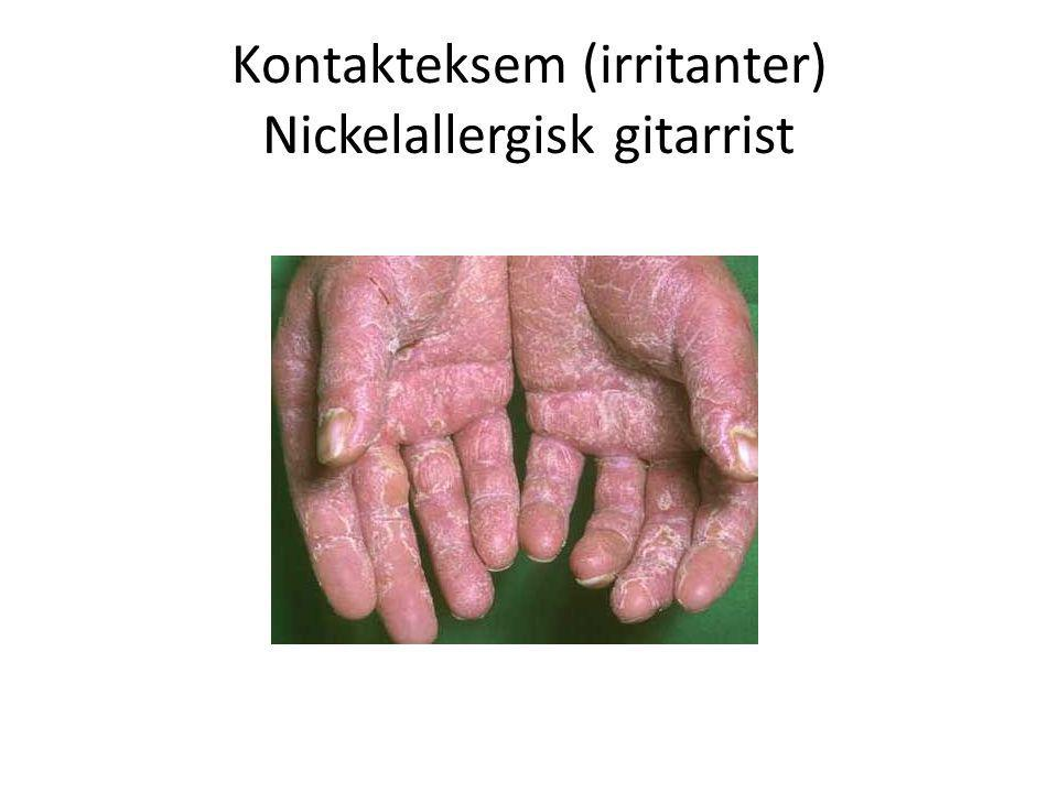 Kontakteksem (irritanter) Nickelallergisk gitarrist