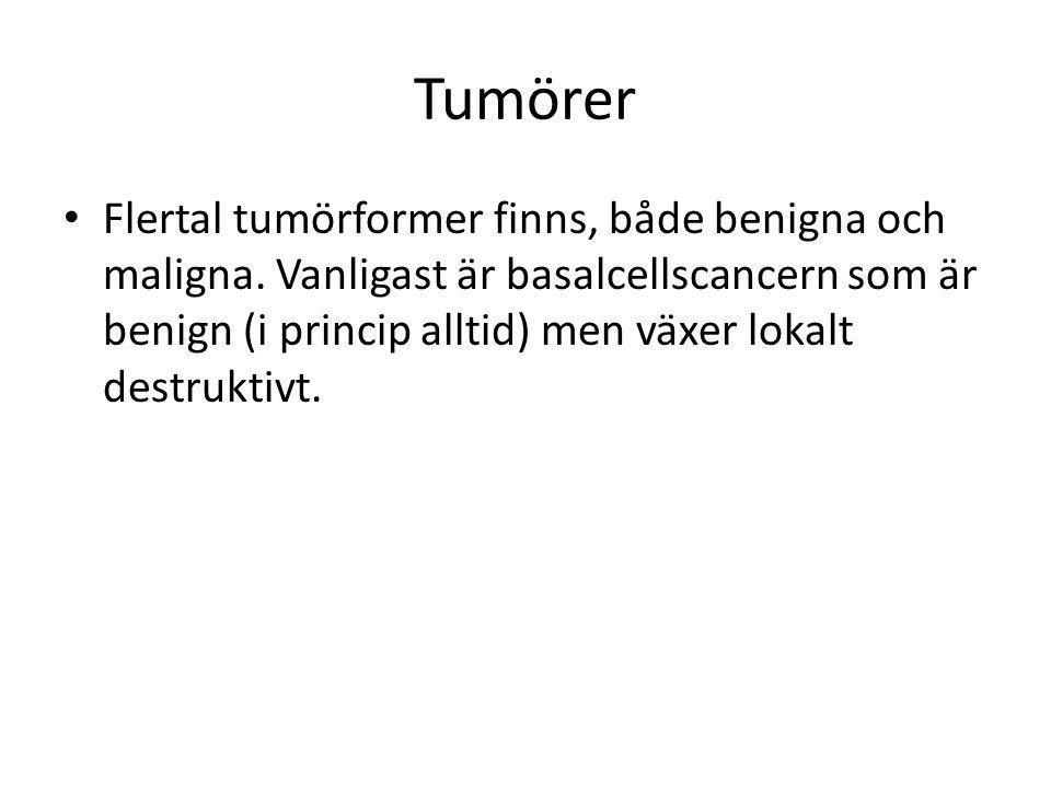 Tumörer