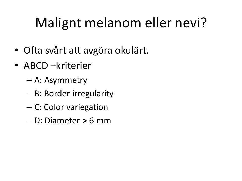 Malignt melanom eller nevi