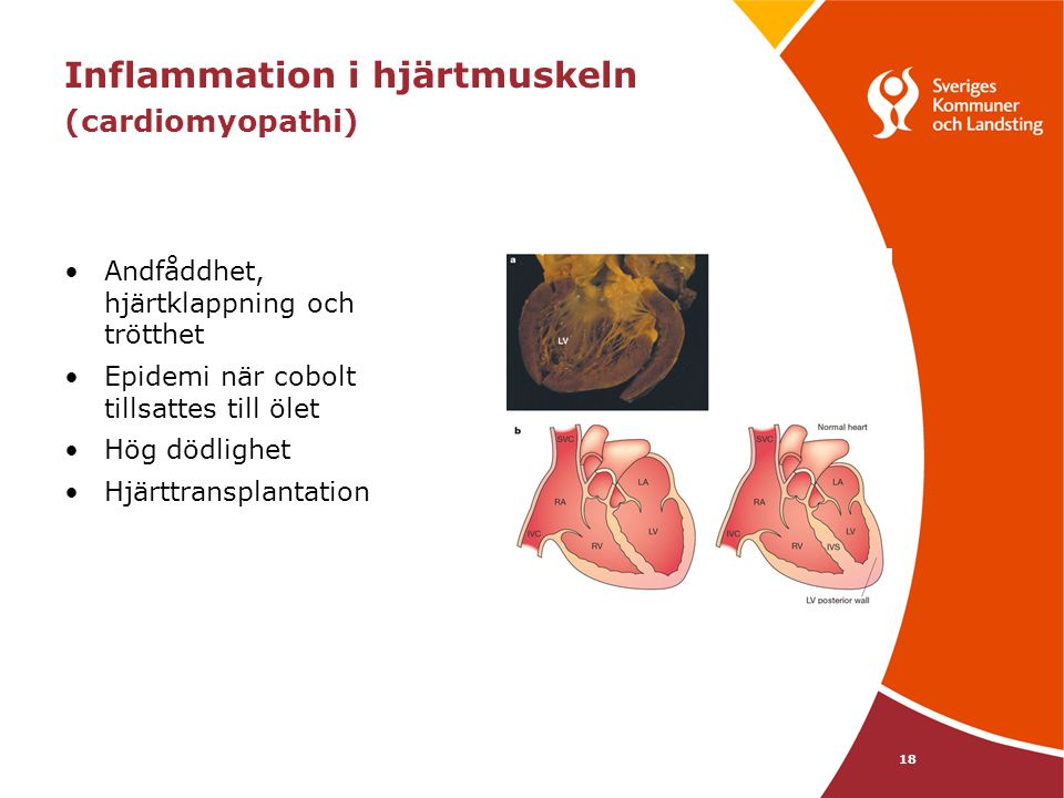 Inflammation i hjärtmuskeln (cardiomyopathi)
