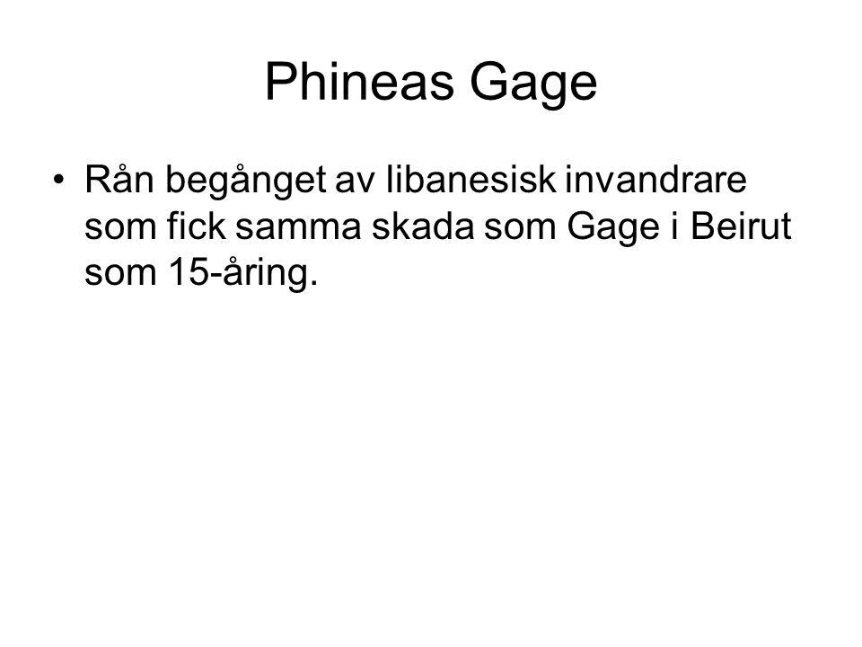 Phineas Gage Rån begånget av libanesisk invandrare som fick samma skada som Gage i Beirut som 15-åring.