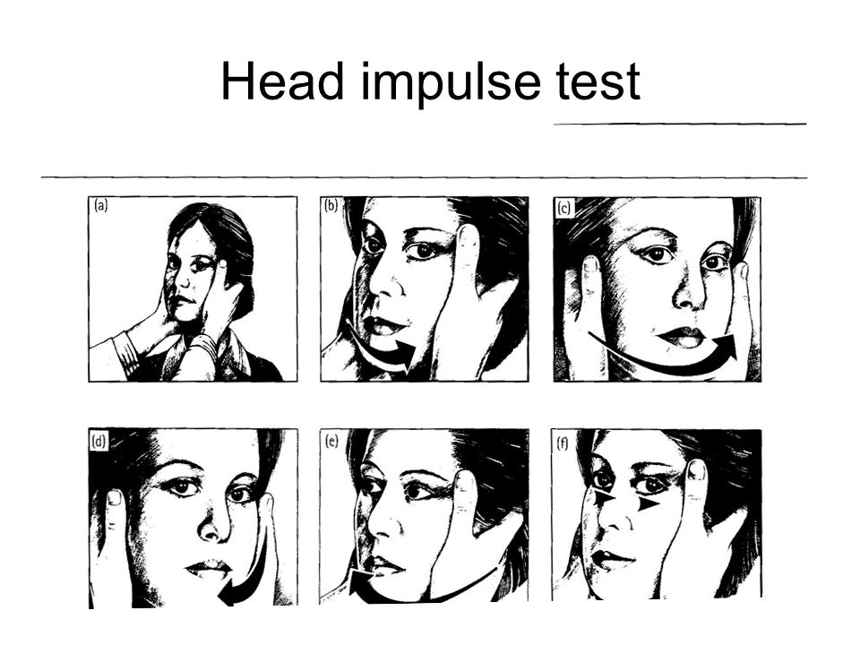 Head impulse test