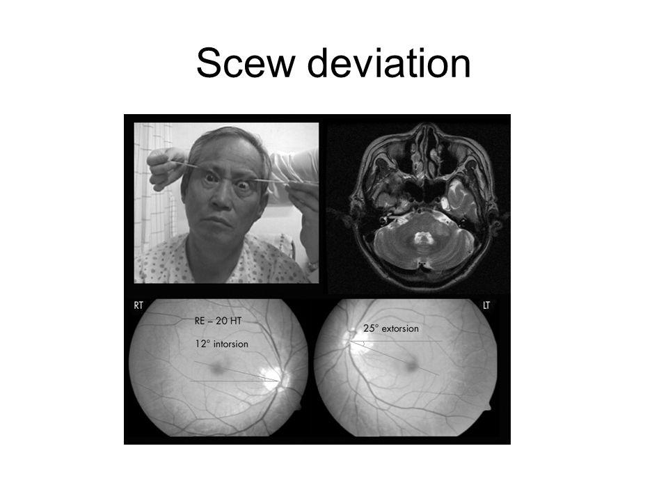 Scew deviation