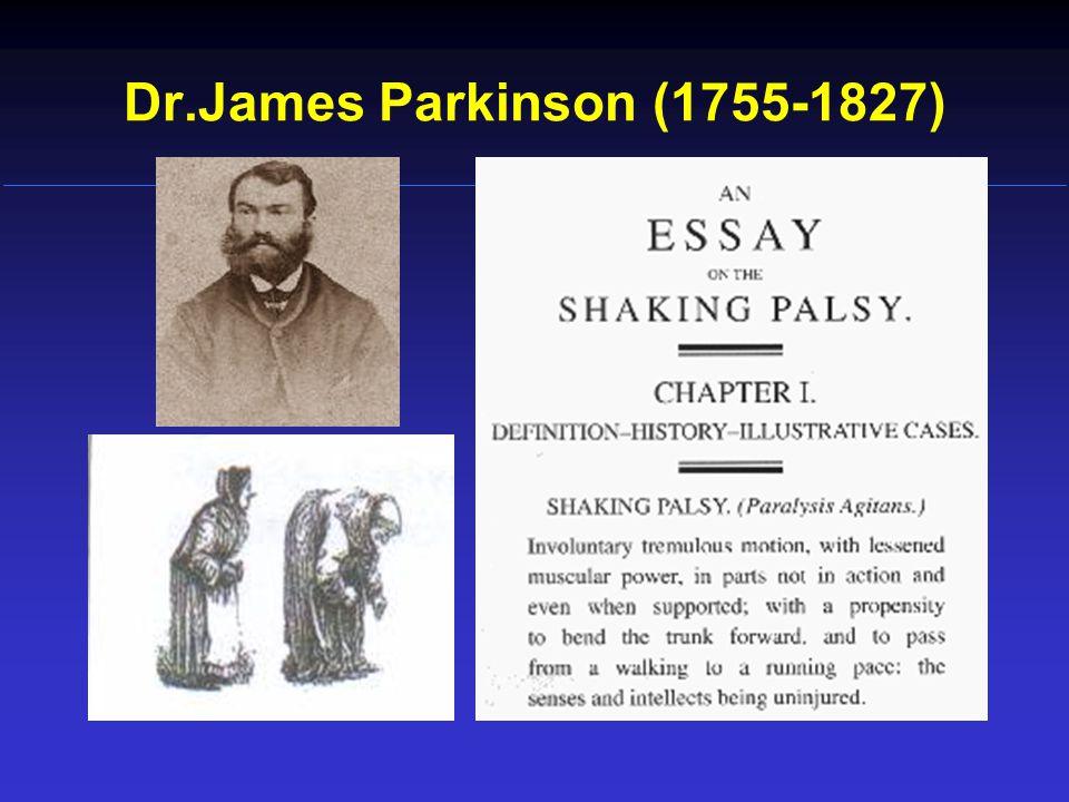 Dr.James Parkinson (1755-1827)