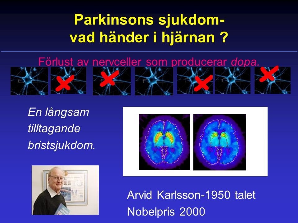 Parkinsons sjukdom- vad händer i hjärnan