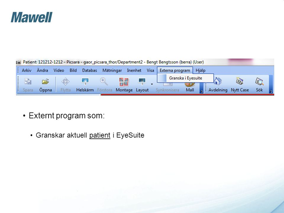 Externt program som: Granskar aktuell patient i EyeSuite
