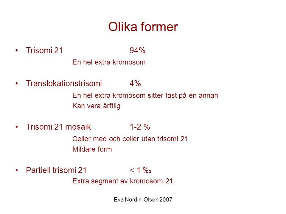 Olika former Trisomi 21 94% En hel extra kromosom