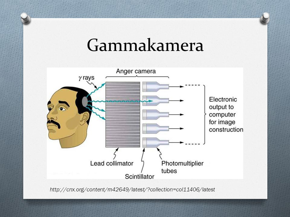 Gammakamera http://cnx.org/content/m42649/latest/ collection=col11406/latest