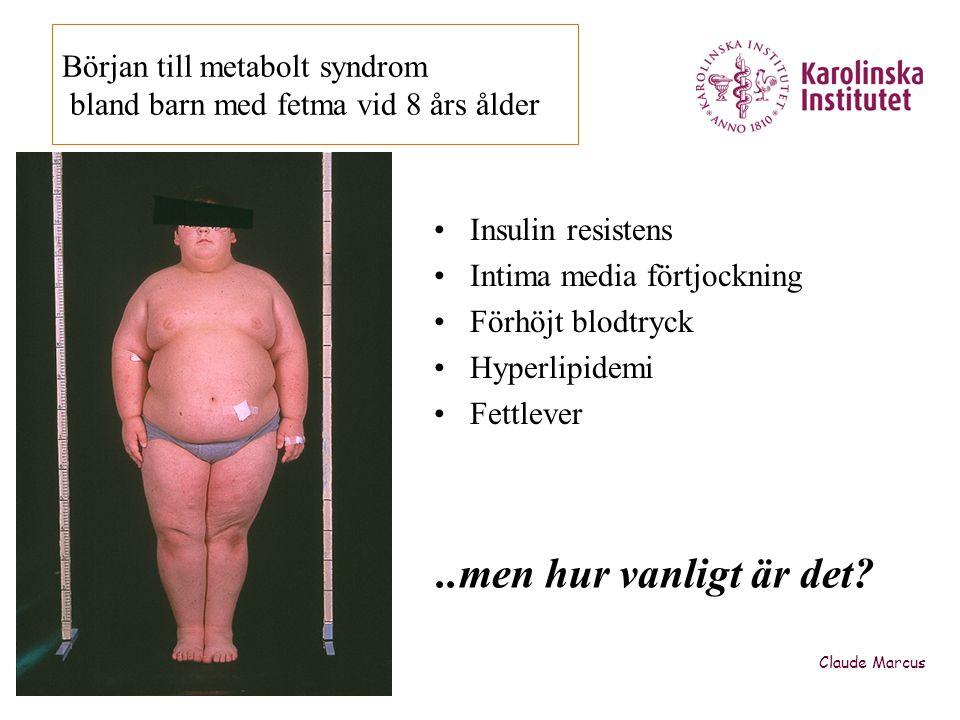 Början till metabolt syndrom bland barn med fetma vid 8 års ålder
