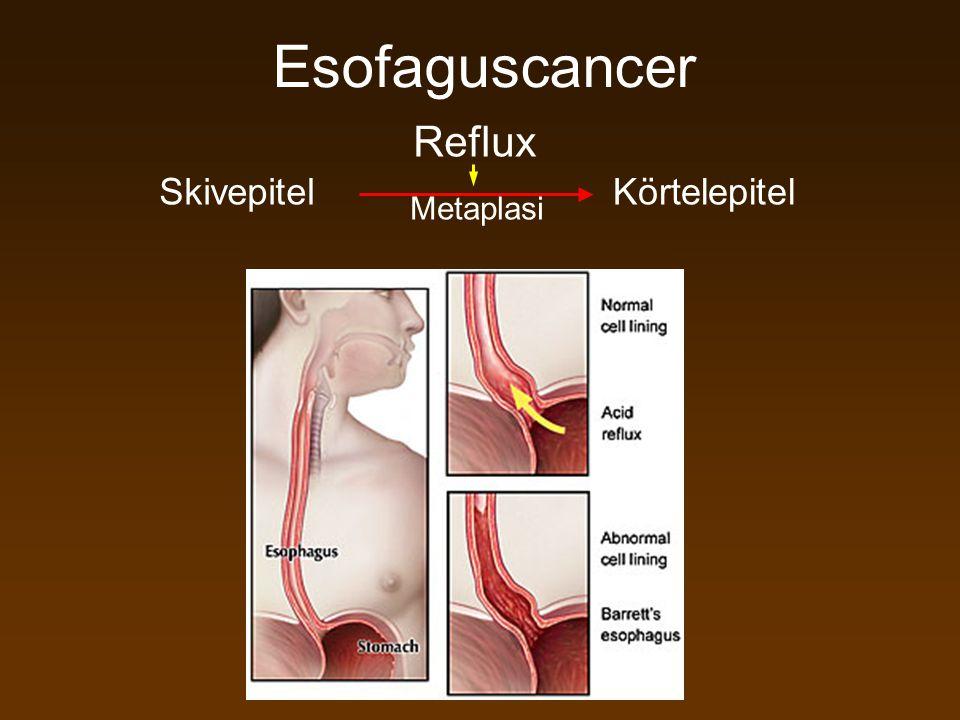 Esofaguscancer Reflux Skivepitel Körtelepitel Metaplasi