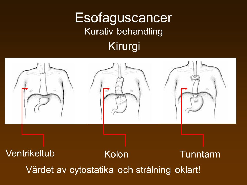 Esofaguscancer Kurativ behandling
