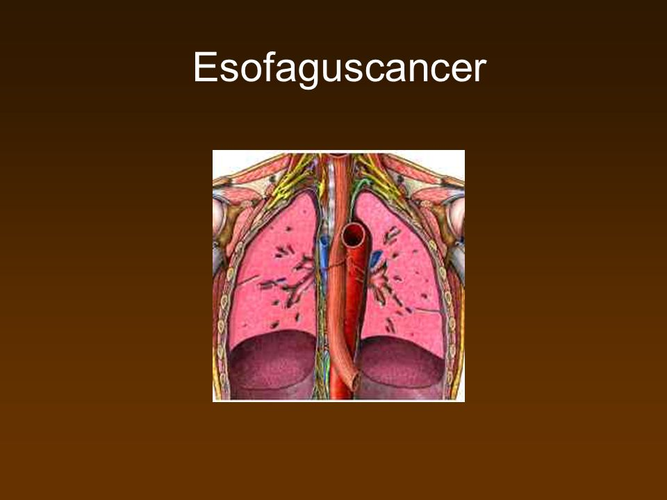 Esofaguscancer