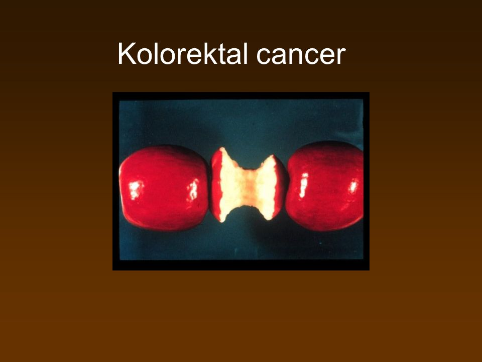 Kolorektal cancer
