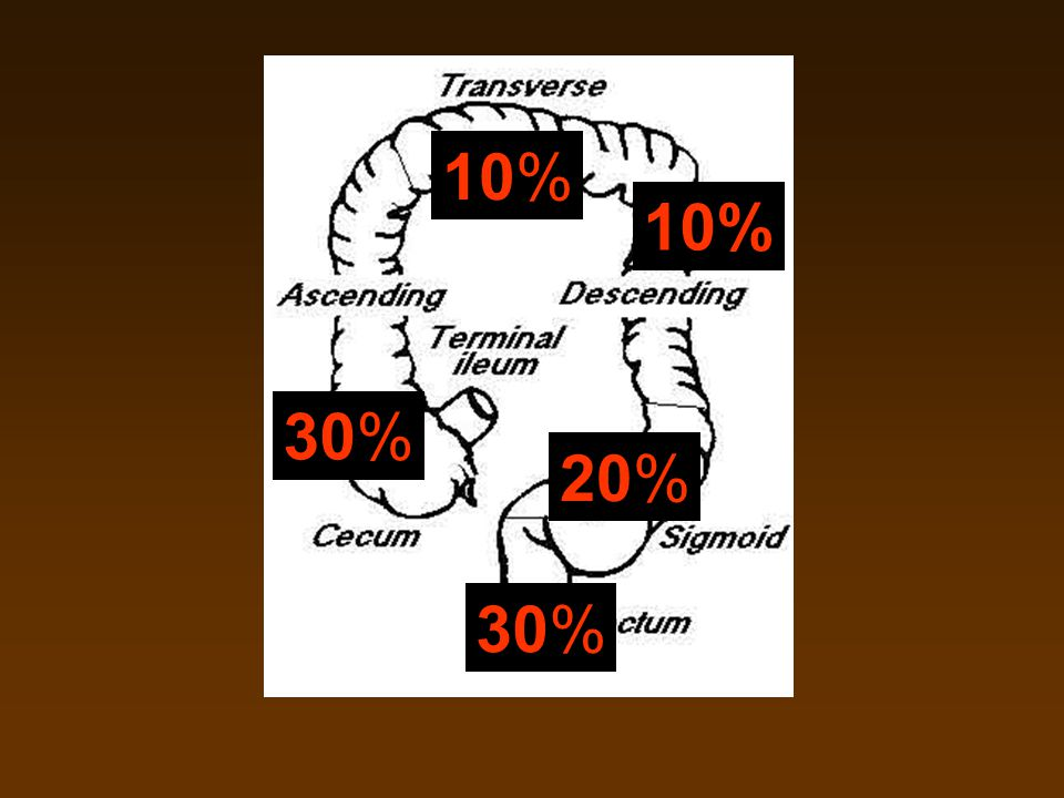 10% 10% 30% 20% 30%