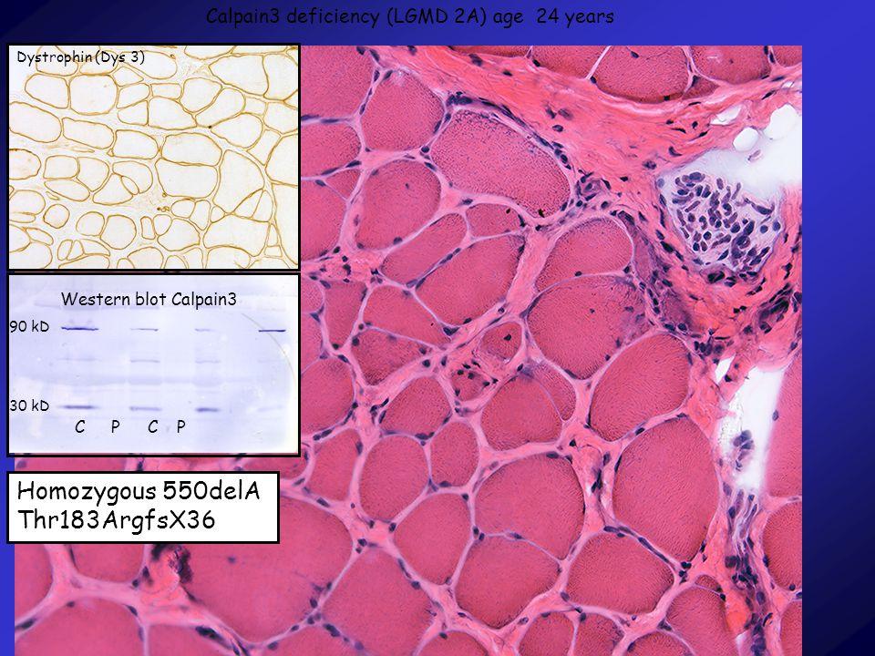 Homozygous 550delA Thr183ArgfsX36