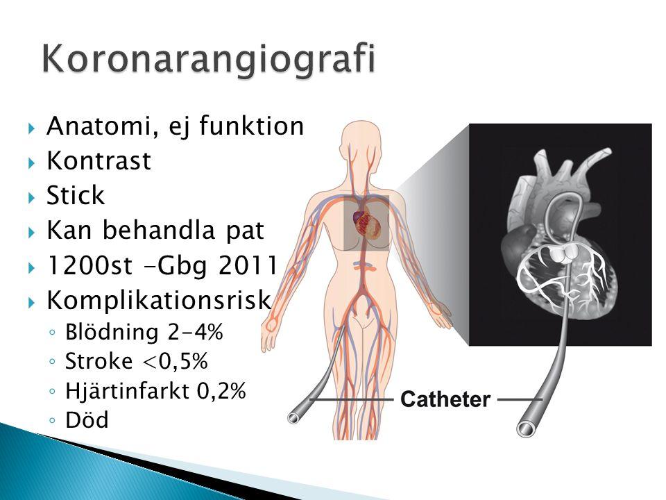 Koronarangiografi Anatomi, ej funktion Kontrast Stick Kan behandla pat