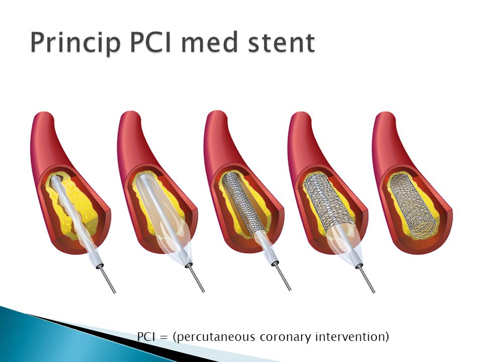 Princip PCI med stent PCI = (percutaneous coronary intervention)