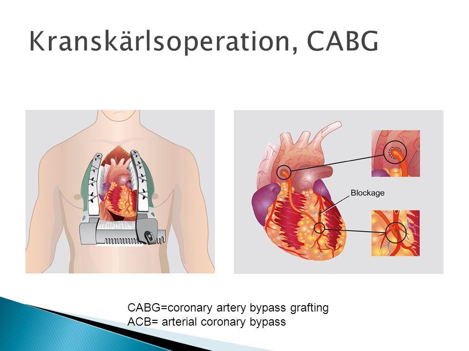 Kranskärlsoperation, CABG
