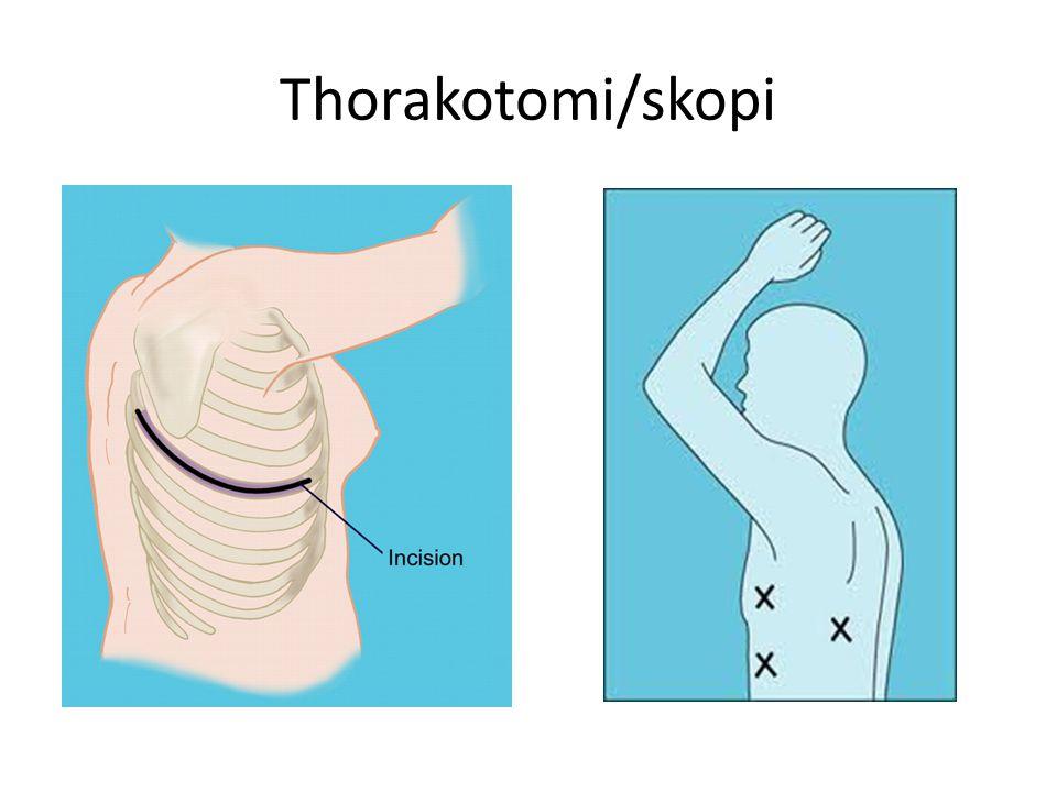 Thorakotomi/skopi