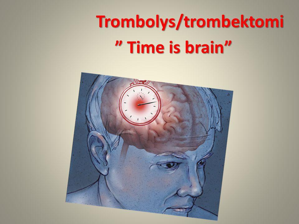 Trombolys/trombektomi