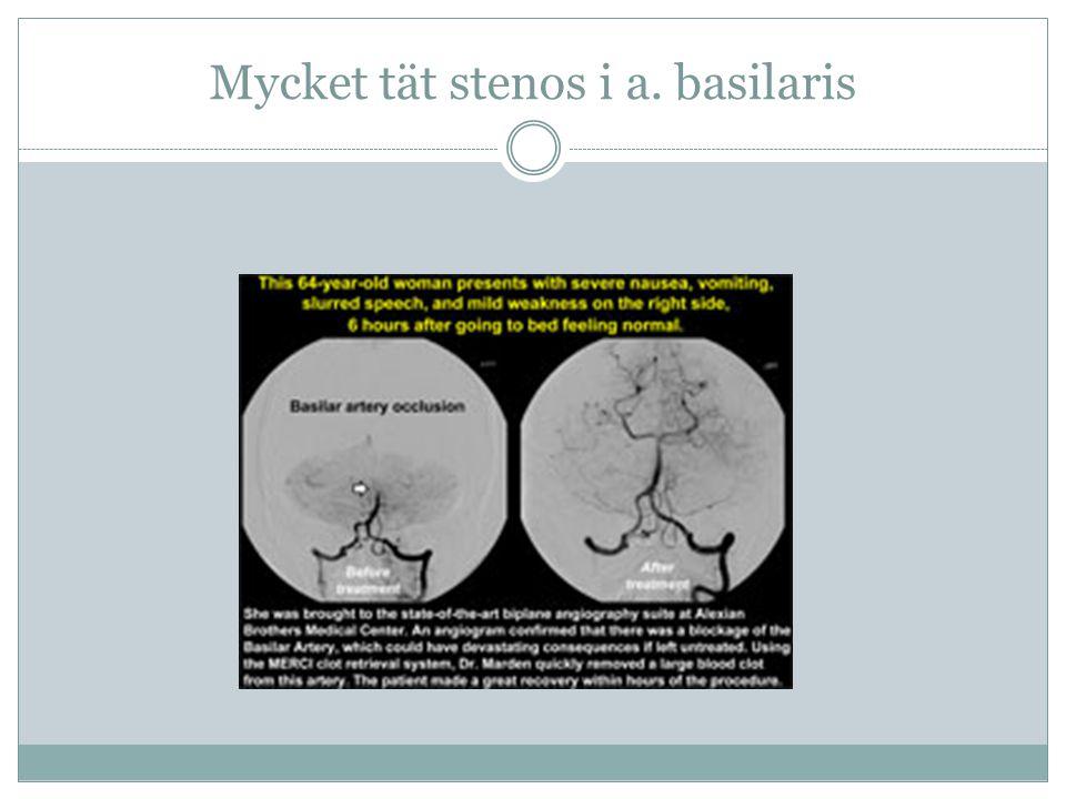 Mycket tät stenos i a. basilaris