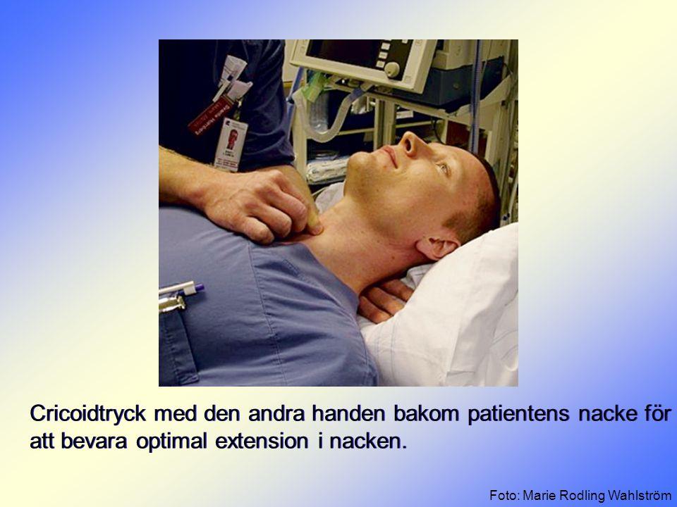 Cricoidtryck med den andra handen bakom patientens nacke för att bevara optimal extension i nacken.