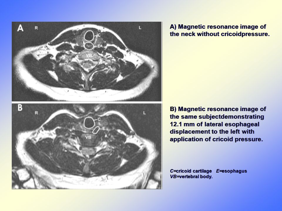 A) Magnetic resonance image of the neck without cricoidpressure.