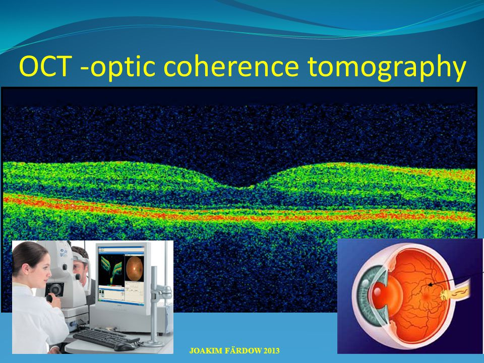 OCT -optic coherence tomography