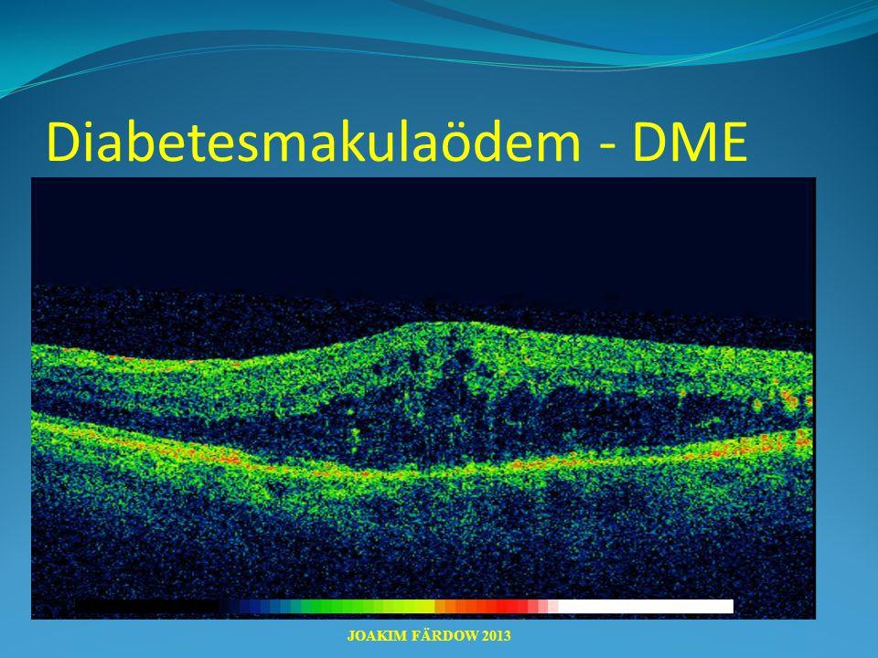 Diabetesmakulaödem - DME