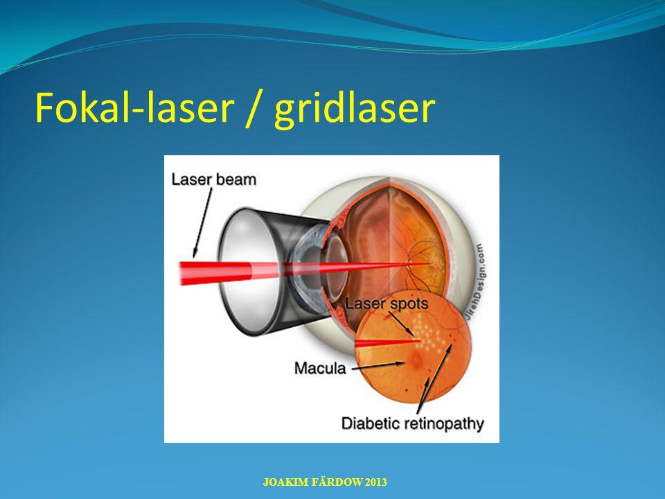 Fokal-laser / gridlaser