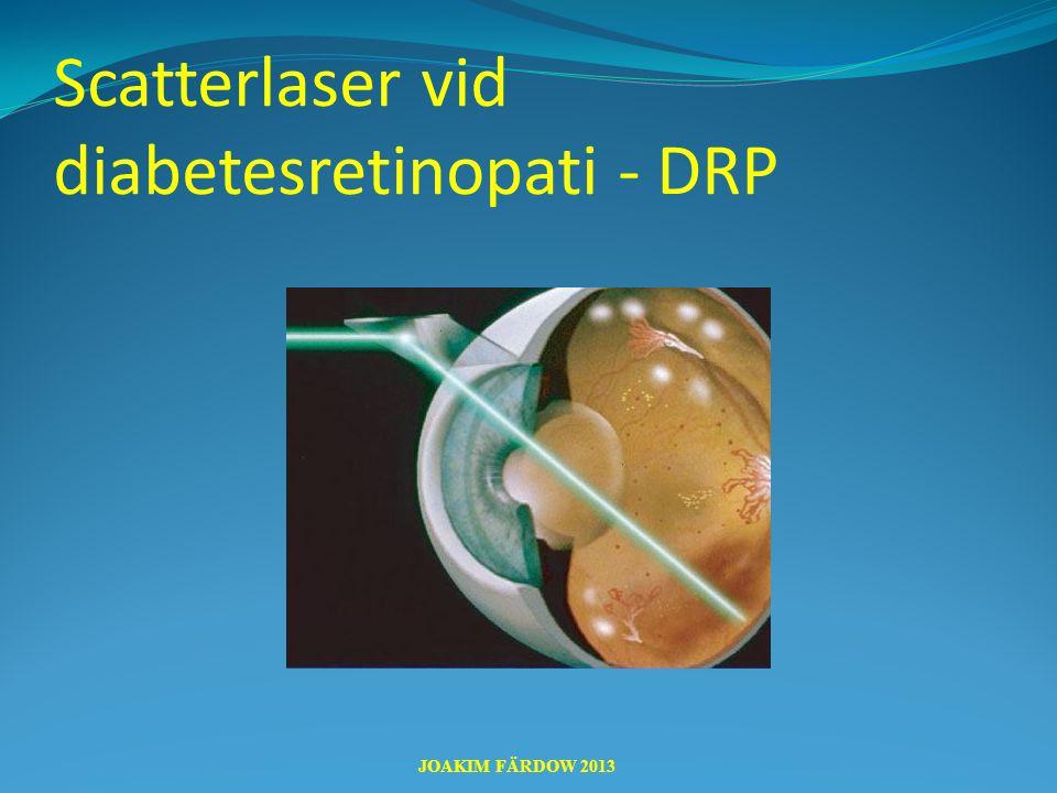 Scatterlaser vid diabetesretinopati - DRP