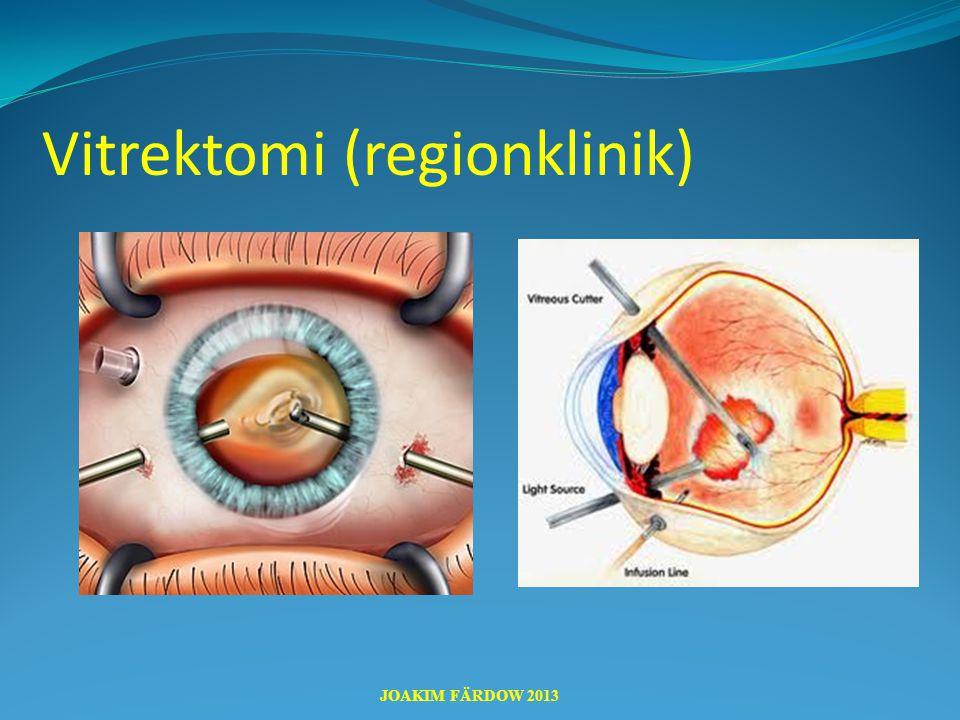 Vitrektomi (regionklinik)