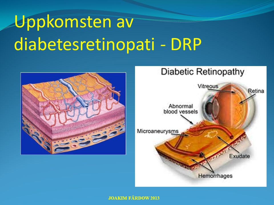 Uppkomsten av diabetesretinopati - DRP