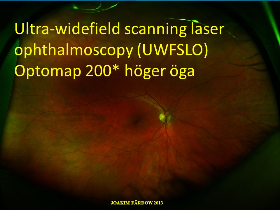 Ultra-widefield scanning laser ophthalmoscopy (UWFSLO) Optomap 200