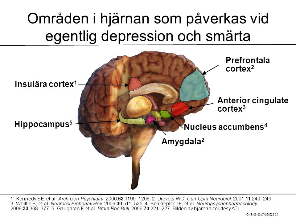 Områden i hjärnan som påverkas vid egentlig depression och smärta