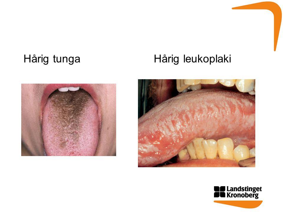 Hårig tunga Hårig leukoplaki