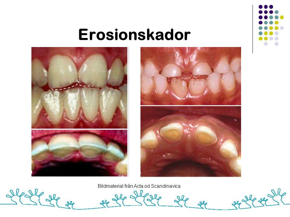 Erosionskador Bildmaterial från Acta od Scandinavica