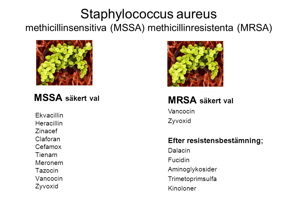 Staphylococcus aureus methicillinsensitiva (MSSA) methicillinresistenta (MRSA)