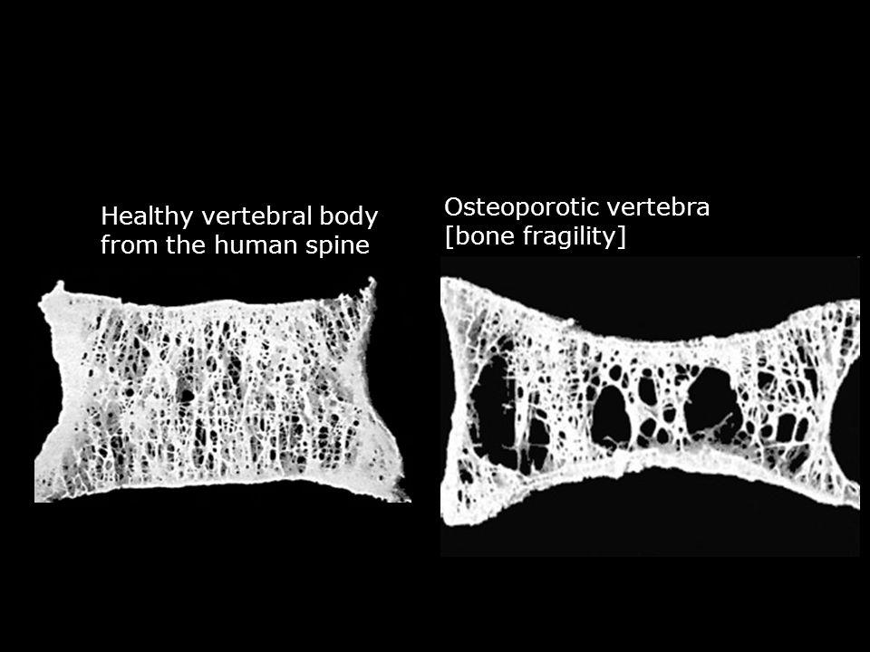 Osteoporotic vertebra