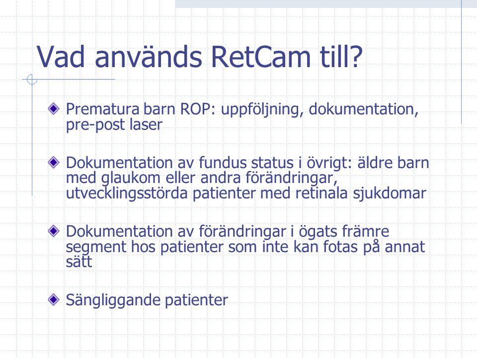 Vad används RetCam till