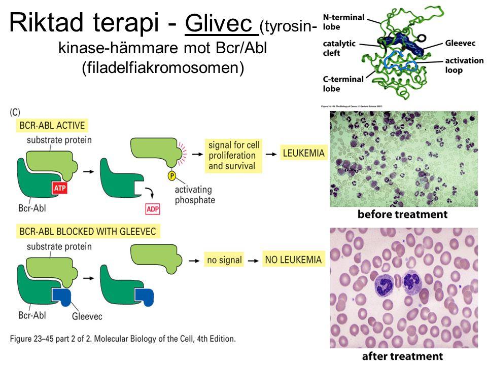 Riktad terapi - Glivec (tyrosin-kinase-hämmare mot Bcr/Abl (filadelfiakromosomen)