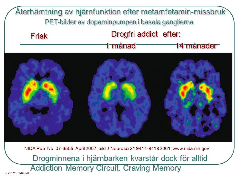 Återhämtning av hjärnfunktion efter metamfetamin-missbruk