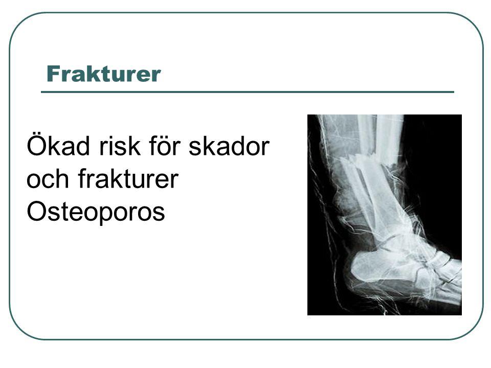 Frakturer Ökad risk för skador och frakturer Osteoporos