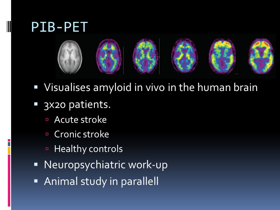 PIB-PET Visualises amyloid in vivo in the human brain 3x20 patients.